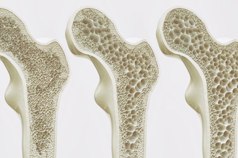 Bone Health in the Menopause